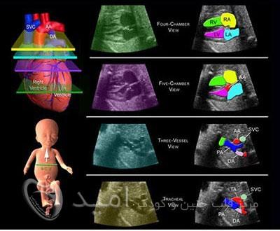 پزشک متخصص بیماری قلبی نوزاد